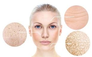 8 Cách trị khô da mặt ngày hanh khô hiệu quả bạn cần biết